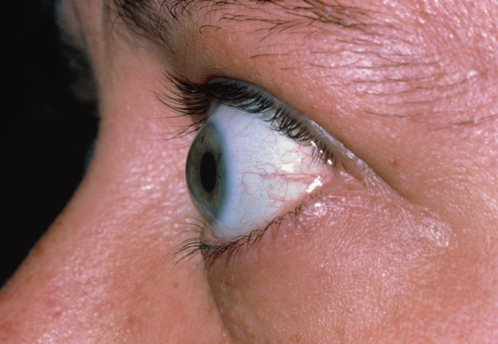 Olho saltado é um dos sinais de hipertireoidismo | Juliano Pimentel